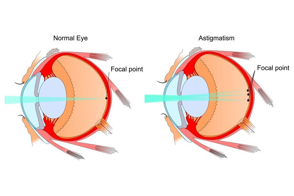Diagram explaining the difference between a normal eye and one with astigmatism