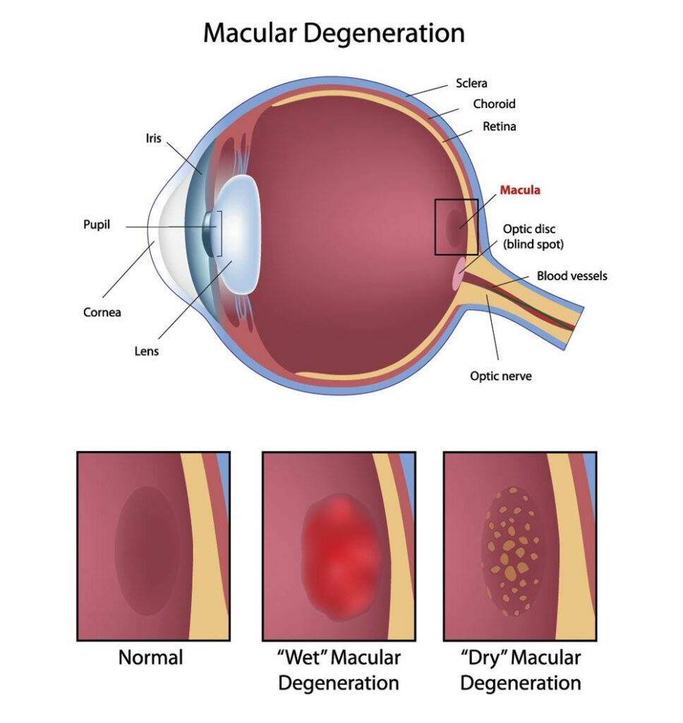 Diagram showing Wet Macular Degenerations and Dry Macular Degerneration
